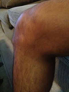 22-year old male with Osgood Schlatter.jpg
