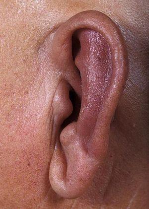 Relapsing polychondritis - Wikipedia