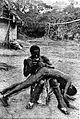 Administration of an enema, Ivory Coast, Africa. Wellcome L0006535.jpg