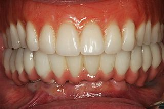 Your Teeth Doesnt Have To Give Away Your Age 320px-After_All_on_6_Dental_Implants_in_Mexico