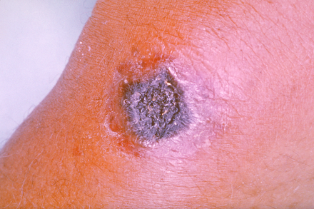 Anthrax skin lesion Anthrax PHIL 2033.png