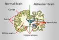 Brain-ALZH.png