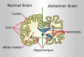 Alzheimer's Disease Neuroimaging Initiative - Figure 4. Structural changes in the Alzheimer brain compared to the normal brain include thinning of the cortex, expansion of the ventricles, enlargement of the sulci, and general loss of brain volume.