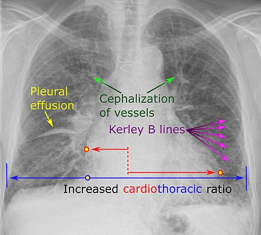 Chest radiograph with signs of congestive heart failure - annotated