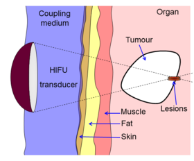 Diagram showing liver lesioning using a HIFU transducer 2.png