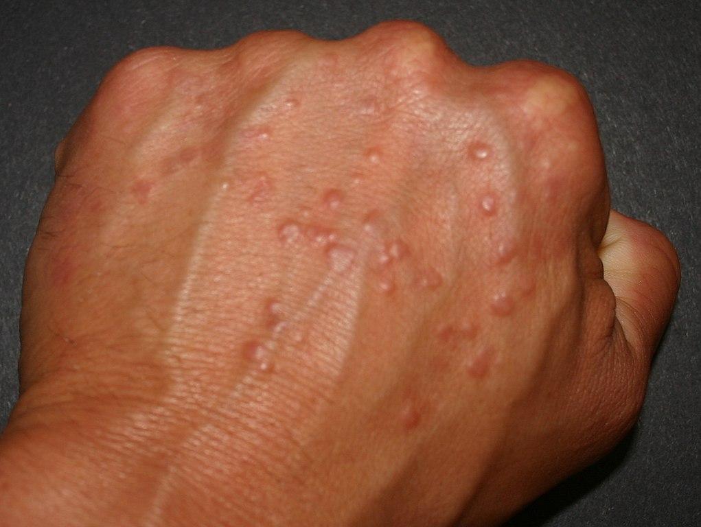 Dermatitis In Scalp Natural Treatments