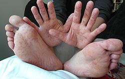 синдром рука нога рот у детей фото