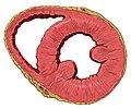 Heart normal short axis section.jpg