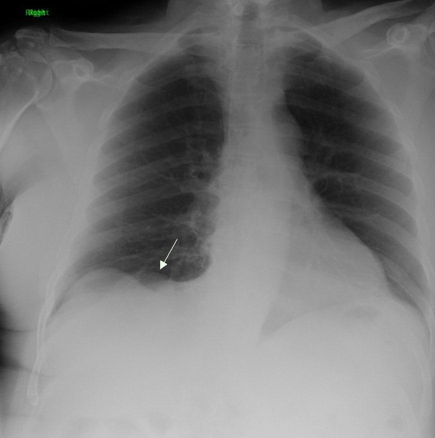 Primary Pulmonary Sarcoma