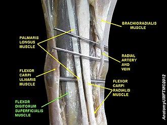 Flexor digitorum superficialis muscle - Image: Slide 3GGG