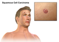 Squamous Cell Carcinoma.png