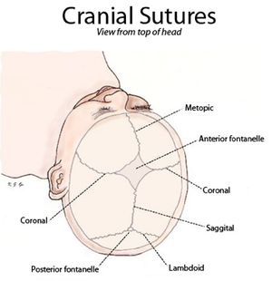 Craniofacial surgery - Fig. 1 Cranial sutures viewed from top of head