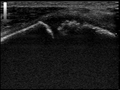 Ultrasound Scan ND 084648 0856050 cr.png