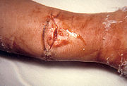 Wound botulism involvement of compound fracture, right arm.jpg