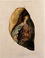 A diseased lung. Coloured mezzotint by W. Say after F. R. Sa Wellcome V0009751ER.jpg