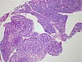 Adenocarcinoma and small cell, B-cell lymphoma - Case 276 (9654865979).jpg