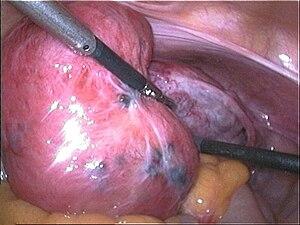 Adenomyosis - Wikipedia