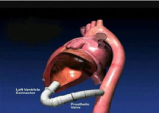 Apicoaortic Conduit