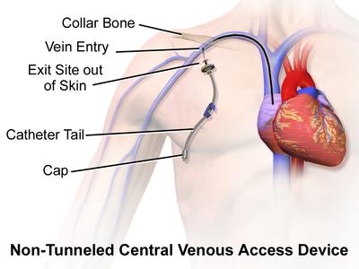 Blausen 0181 Catheter CentralVenousAccessDevice NonTunneled.png