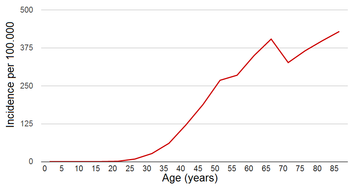 English: Breast cancer incidence by age in wom...