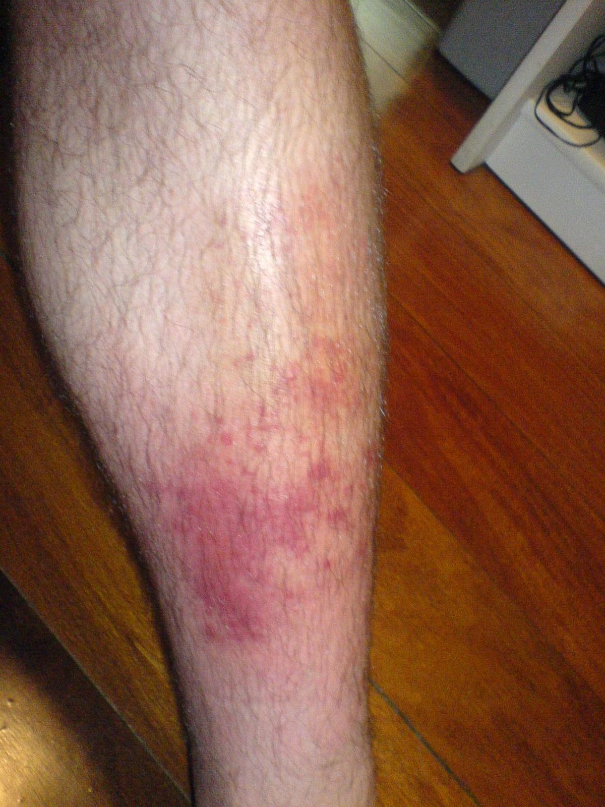 Patch 1 trial cellulitis treatment