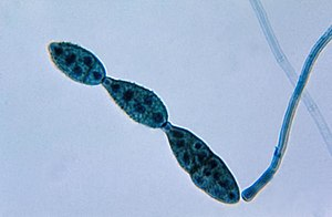 Chain of conidia of an Alternaria sp. fungus PHIL 3963 lores.jpg
