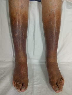 Venous stasis condition of slow blood flow in the veins, usually of the legs