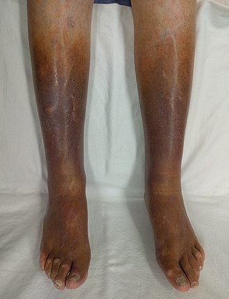 Venous stasis - Skin changes as a result of long term venous stasis