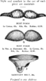 CorsetStyles1909-1910p09.png