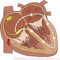 De-WPW (CardioNetworks ECGpedia).png