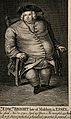 Edward Bright, a man weighing forty three and a half stone. Wellcome V0007006ER.jpg