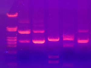 Gel electrophoresis of nucleic acids - DNA gel electrophoresis
