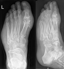 Chronic Gout with Gouty Tophi in the soft tissue