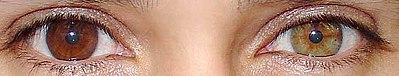 Как называют людей с разным цветом глаз