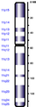 Human chromosome 11 from Hemabase database.png