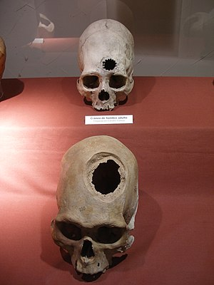 Archeological remains of patients of brain sur...