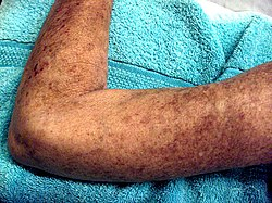 systemisk sklerodermi behandling