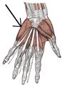Musculusabductordigitiminimi(hand).png