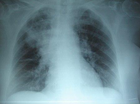 ذات الرئة السفلي الأيمن: يُؤدي التليف الكيسي المُزمن إلى تدمير النسيج البرانشيمي للرئة، مُسببًا في النهاية موت المريض نتيجة لتليف الجهاز التنفسي.