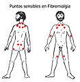 Puntos-sensibles-fibromialg.jpg