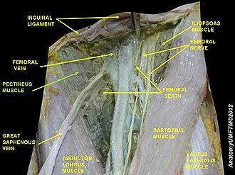 Pectineus muscle - Image: Slide 3GGGGG