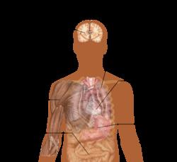 acidosis wikipedia 0 10 Pain Scale Diagram Pain Body Chart Diagram