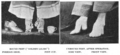 """Woman's bound feet (""""Golden Lilies""""); unbound feet after operation (l-r). (1896).png"""