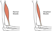 muscle atrophy - wikipedia, Muscles