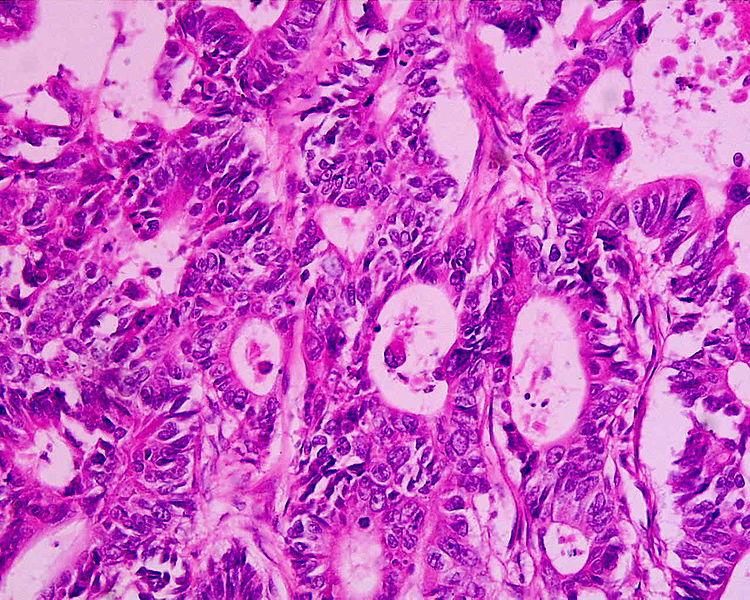 File:Adenocarcinoma moderate differentiated (rectum) H&E magn 400x.jpg