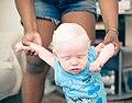 Albino baby by Felipe Fernandes 09.jpg