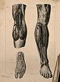 Arteries of the leg; three figures, one detailing the blood- Wellcome V0008446ER.jpg