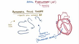 Файл:Atrial fibrillation video.webm