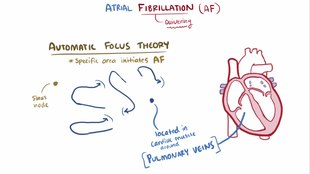 File:Atrial fibrillation video.webm