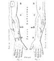 Bertillon - Identification anthropométrique (1893) 351 n&b.png